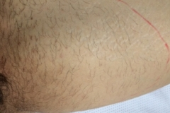 Inner thigh before 1st laser session