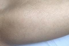 Inner thigh 7 months after 5 laser sessions