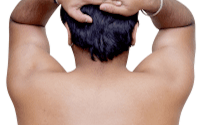 What causes unwanted hair growth in men?