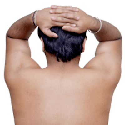 The most common laser hair treatment for men